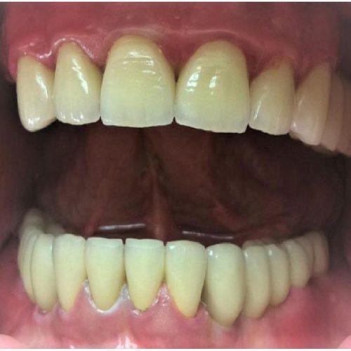 Couronne dentaire : est-ce que ça dure longtemps ?