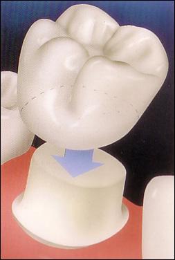 choisir couronne dentaire