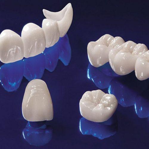 Couronne dentaire : pourquoi choisir ce type de restauration ?