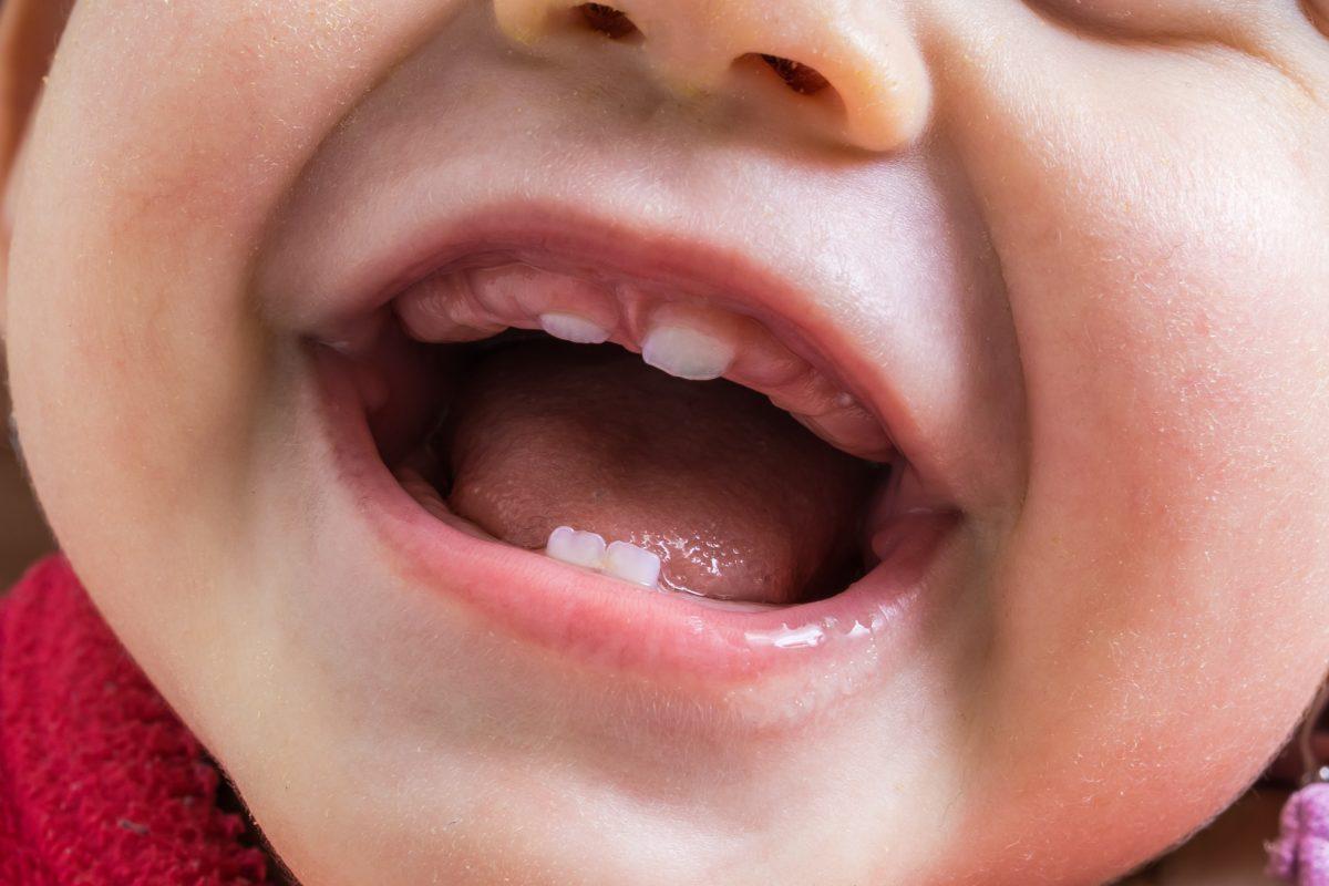 Poussée dentaire molaire symptômes : comment la reconnaître ?