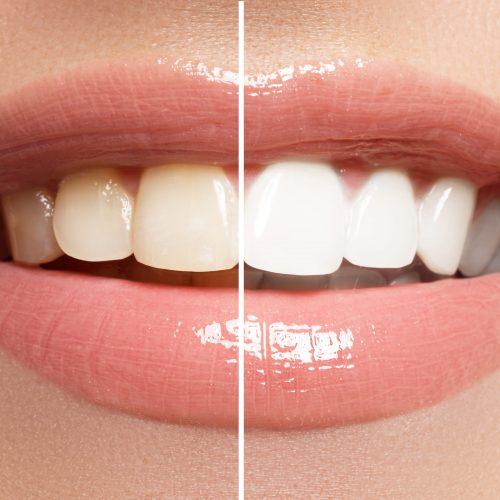 Prix d'un blanchiment dentaire : est-ce sans risque ?