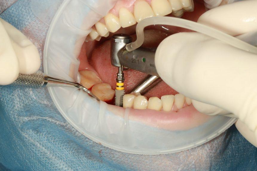 Temps de cicatrisation d'un implant dentaire : Combien ça dure ?