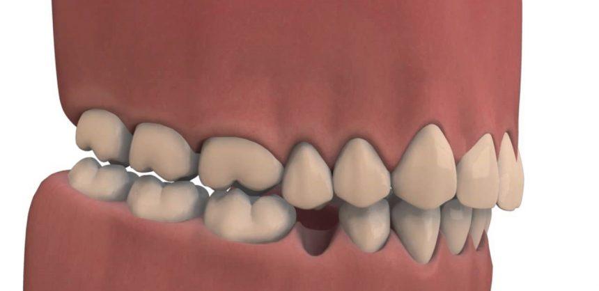 Combien de temps le caillot reste après extraction dentaire : on vous donne la durée précise