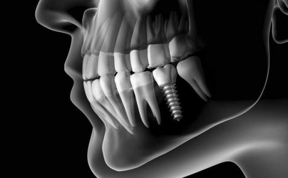Régénérer os dentaire naturellement : c'est quoi une régénération naturelle d'un os dentaire ?